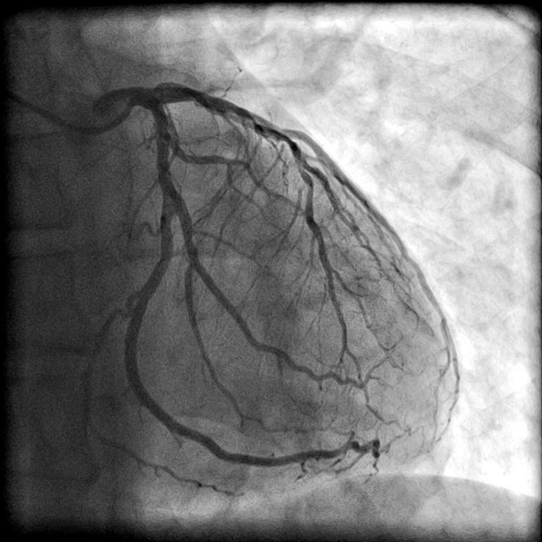 Cateterismo – Informações e solicitação de procedimentos